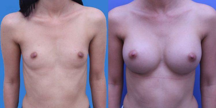 breast_aug_09_1