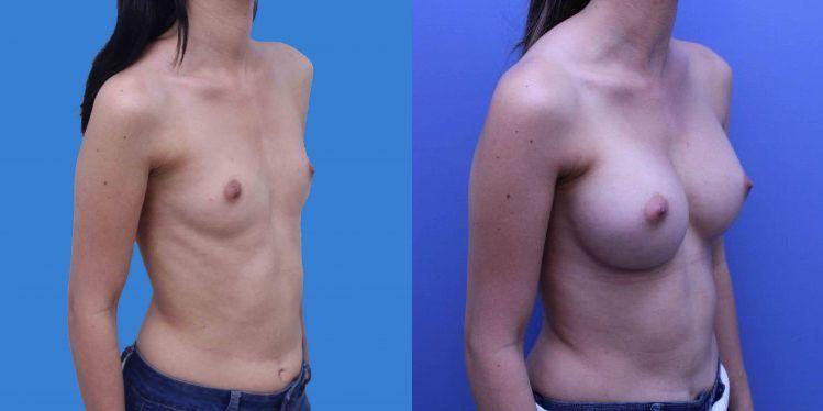 breast_aug_09_4