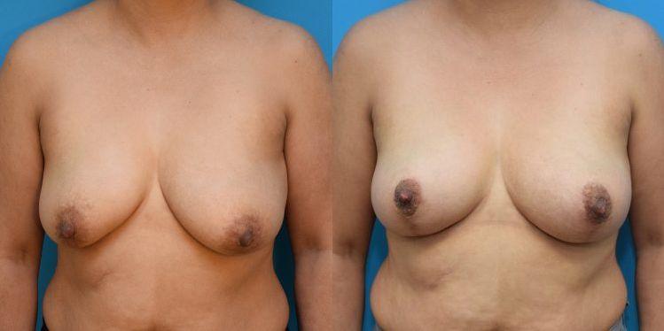 breast_lift_02_1