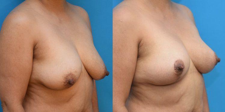 breast_lift_02_2