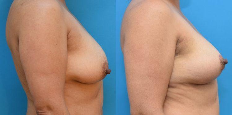 breast_lift_02_3