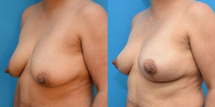 breast_lift_02_4
