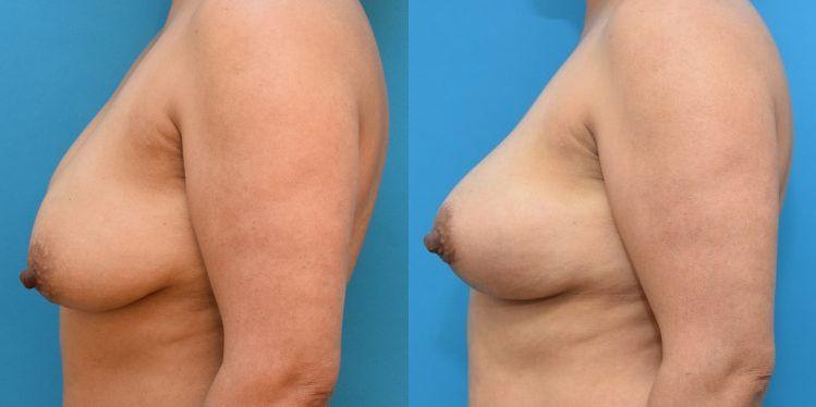 breast_lift_02_5