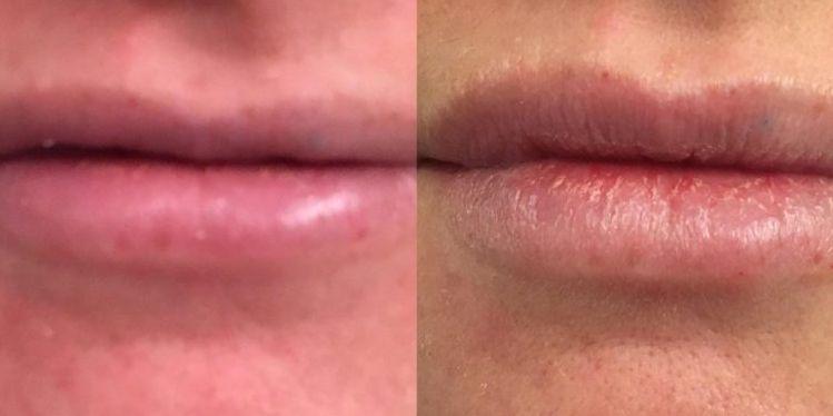filler_03_lips