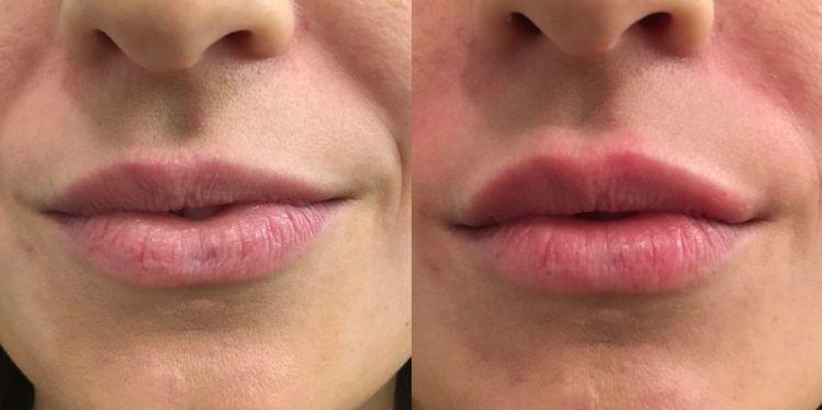 filler_06_lips