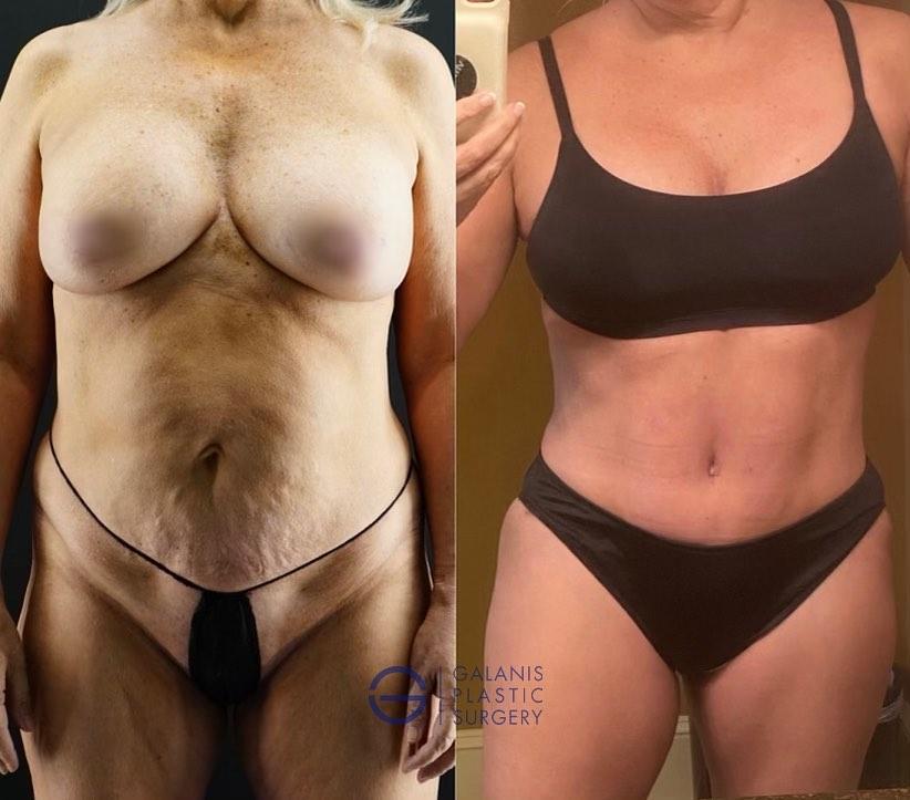 6 Week Post Op Vaser Lipo with Tummy Tuck