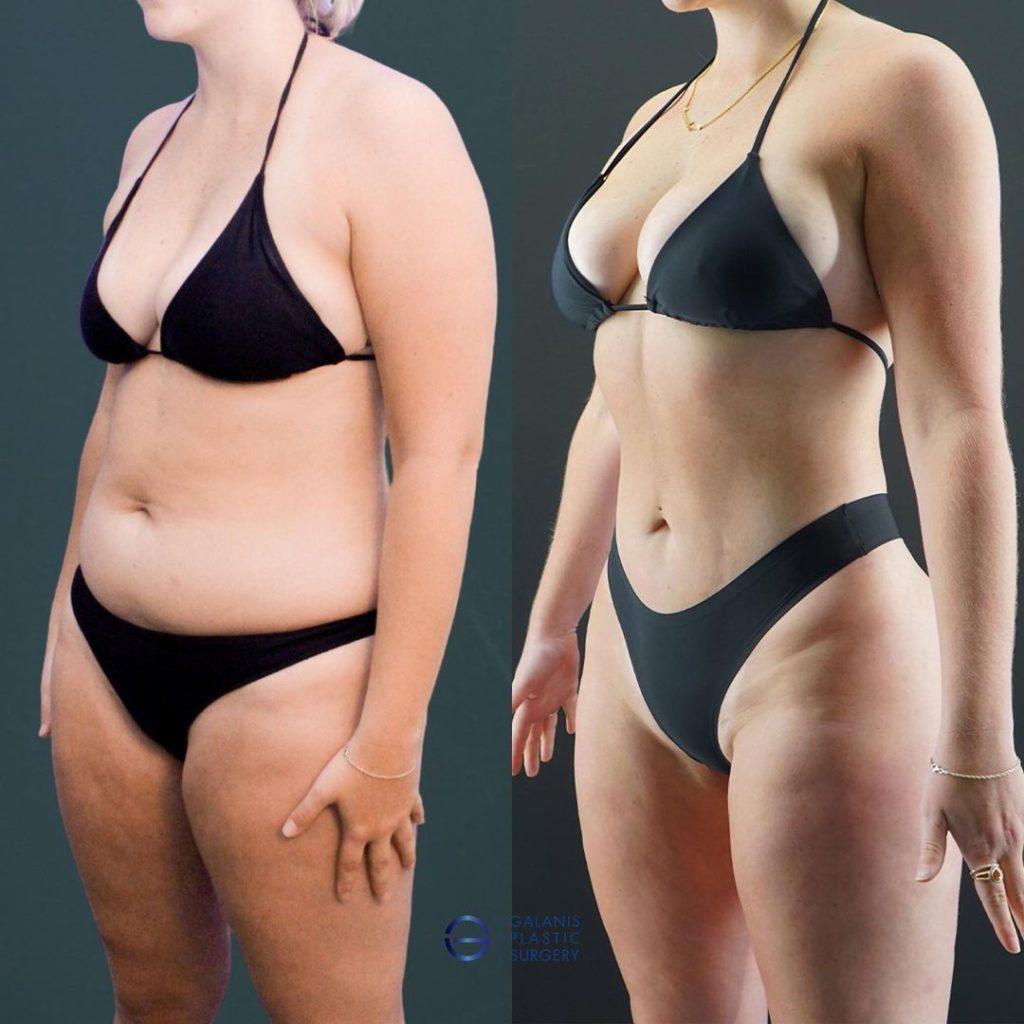Photo-Gallery/Hi-Definition Liposuction